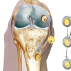 NICE CONSULTS ON RESEARCH RECOMMENDATION FOR KNEE CARTILAGE TREATMENT