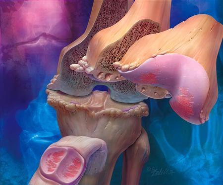 In this illustration, knee joint osteoarthritis is seen showing disease progression from superficial to deep. REUTERS/Newscom/Handout