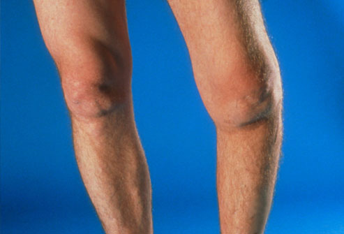 Howto Treat Arthritis in the Knees