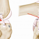 DOCTORS DISCOVER NEW KNEE LIGAMENT THAT MAY BE CRUCIAL FOR ACL INJURIES
