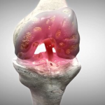 STANFORD UNIVERSITY – RESEARCHERS TAKE UP CHALLENGE OF REVIVING CARTILAGE