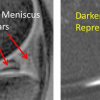 STEM CELL TREATMENT TO REPAIR MENISCUS VERY CLOSE