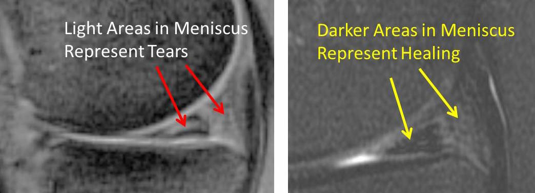 MENISCUS STEM CELL